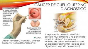 Diagnostico de cancer de cuello uterino