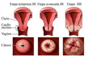 Etapas del cancer de cuello uterino