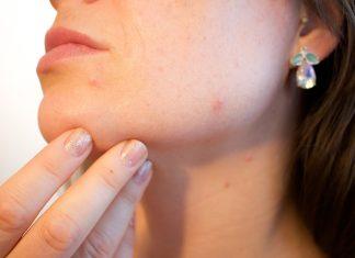 Elimina el acné es una de las frases más llamativas para mujeres y hombres.