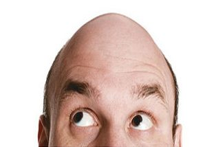 Calvicie o pérdida del cabello