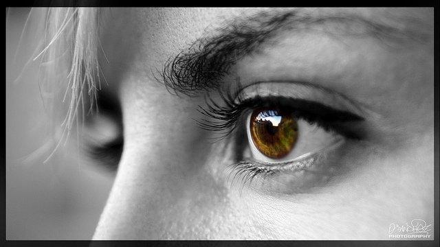 Se ha hinchado el ojo y la rubefacción de la persona el picor de la cutis