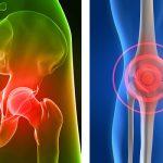enfermedad de la osteoporosis