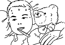 Sobredosis de paracetamol