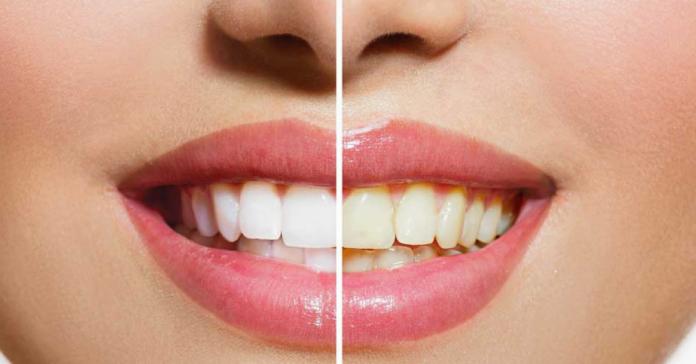 Blancura de los dientes