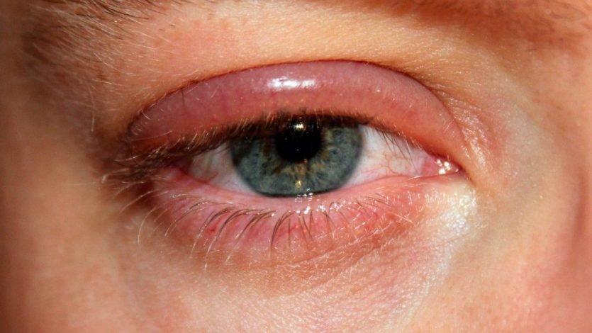 Prevención con la blefaritis