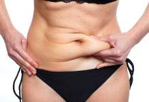 La flacidez después de perder peso