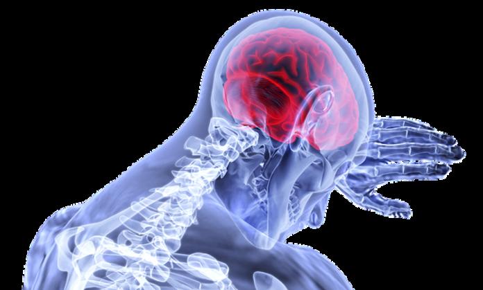 Ante un ataque cerebrovascular