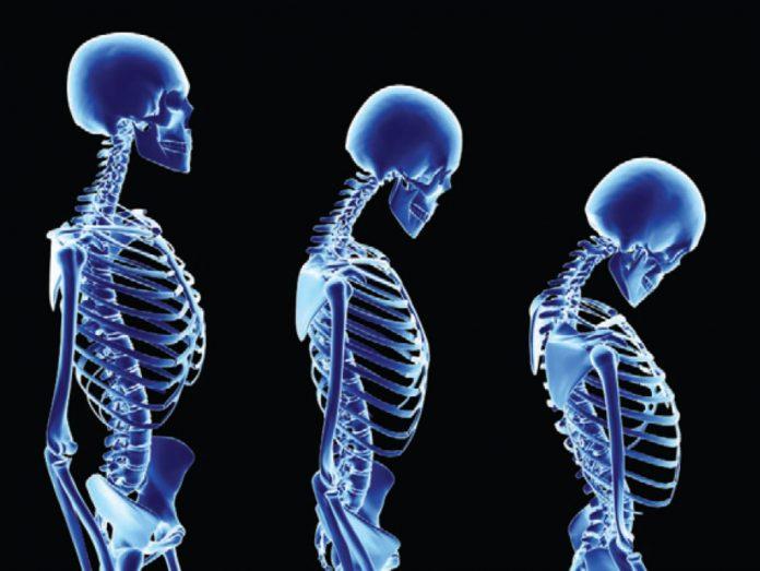 ¿Cómo evito la osteoporosis?
