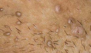 Las Verrugas en los Genitales.