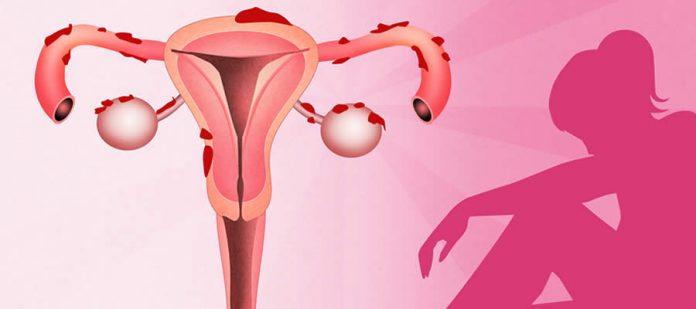 La menstruación retrógrada