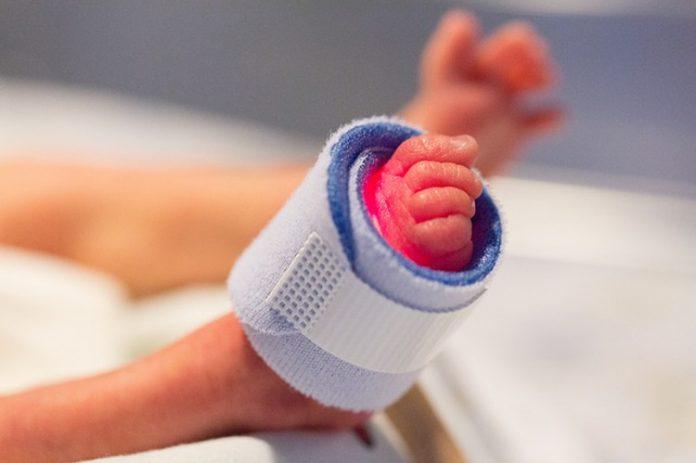 La prematuridad