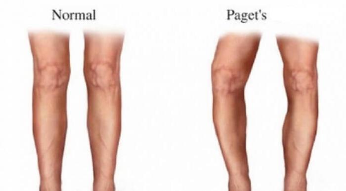Enfermedad de Paget: Síntomas, diagnostico y tratamiento