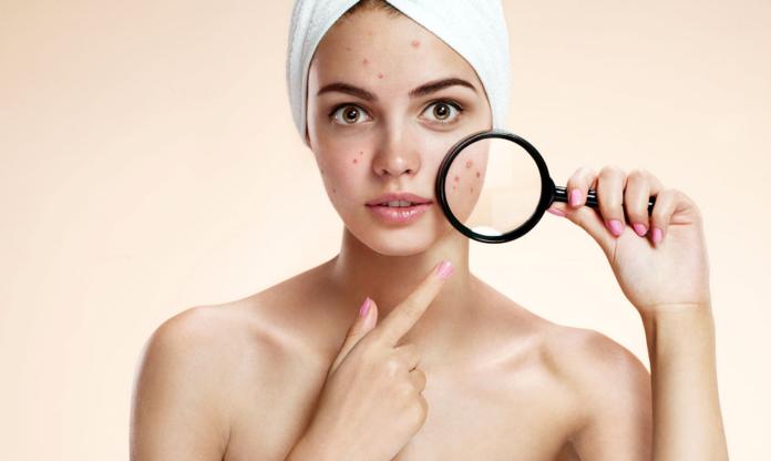 Acné hormonal: causas, manifestaciones y tratamientos