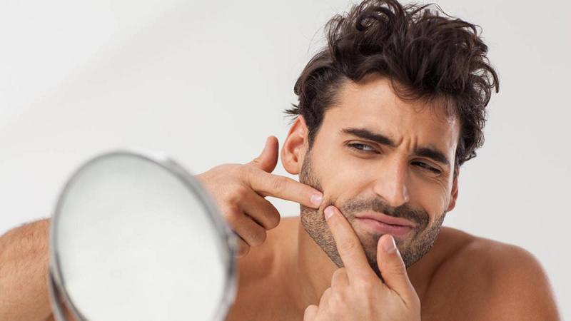 Causas de las espinillas en el rostro y consejos para combatirlas