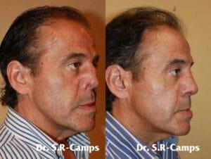 rinoplastia antes y después DR. Rodriguez