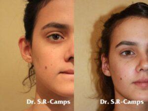 Rinoplastia realizada por el Doctor Rodríguez Camps